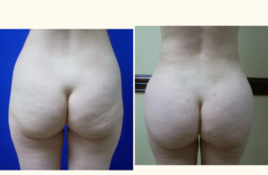 brazilian butt lift fat transfer empty procedure 1381806048000
