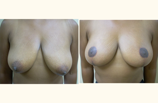 breast breast lift 1401741139192
