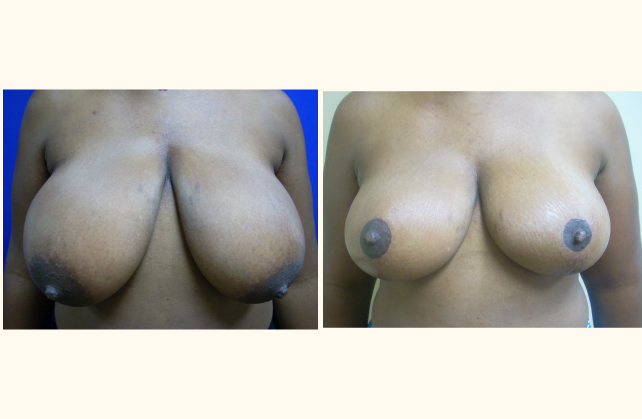 breast breast reduction 1400800117033