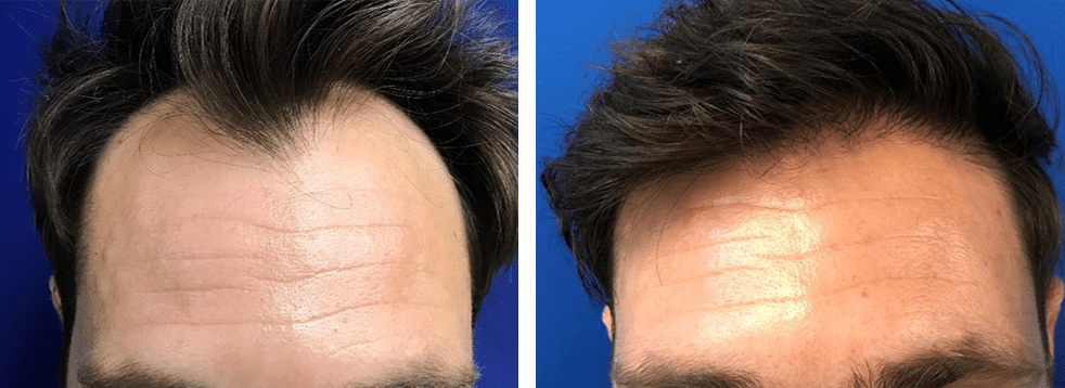 neograft hair transplant case 14